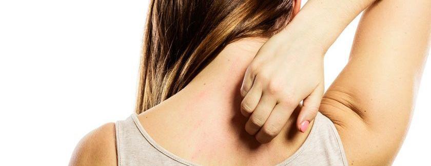 Dermatilomanía o pellizcarse - De Salud Psicólogos - José De Sola - Psicólogos en Madrid - Psicólogos en Málaga